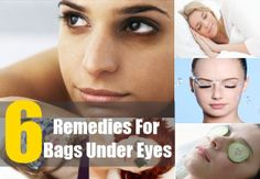 6 Remedies For Bags Under Eyes&  join us https://www.facebook.com/groups/319668218368286/