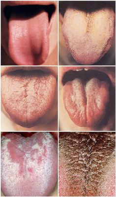 The tongue is a place that hide numerous bacteria which create the bad odor in the mouth. And the more layers the tongue has, the worse is the smell. Get Healthy, Healthy Tips, Tongue Health, Health And Wellness, Health Fitness, Bad Breath, Take Care Of Yourself, Healthy Lifestyle, Conditioner