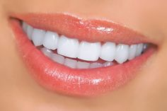 Dental Veneers, Dentists in Brampton, Dental Offices, Dental Info,