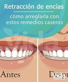 Dental Activities for Kids - Todo Sobre La Salud Bucal 2020 Dental Health, Oral Health, Health And Wellness, Health Fitness, Natural Home Remedies, Herbal Remedies, Health Remedies, Flu Remedies, Receding Gums