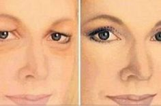 How to Get Rid of Drooping Eyelids with This Natural Remedy! Skin Problems, Health Problems, Face Skin, Face And Body, Beauty Secrets, Beauty Hacks, Egg Face Mask, Beauty Care, Hair Beauty