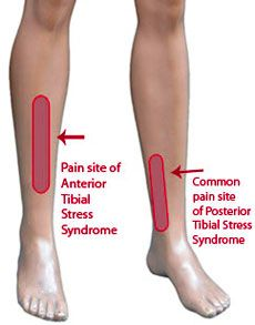 Shin splints can affect anyone from athletes to those who put a lot of stress on the lower leg. Often times, shin splints are associated with sporting Shin Stretches, Shin Splint Exercises, Sciatica Stretches, Knee Exercises, Hip Problems, Runner Problems, Baby Massage, K Tape, Calf Pain
