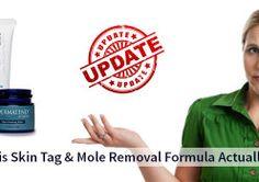 Dermatend Reviews: A Good Skin Tag Mole Remover?