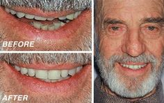 We offer 6 styles of full and partial ComfiDents® to give you a wide range of affordable denture options.