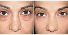 Quickly Cure Fatigue and The Circles Under Your Eyes With This Aromatherapy Trick