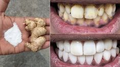 In two minutes, the white teeth whitening and globe such as pearls, this. Teeth Health, Healthy Teeth, Thigh Exercises For Women, Betty Brosmer, Stained Teeth, Lemon Essential Oils, Hygiene, White Teeth, Organic Beauty