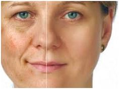 So now that you are aware of all these incredible remedies for wrinkles, it's time to use them. In no time, you will notice fewer wrinkles. Creme Visage Aloe Vera, Masque Aloe Vera, Health And Wellness, Health Care, Health And Beauty, Crawling In My Skin, Age Spots On Face, Home Remedies, Beauty Women