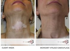 Before & After Photos of Vitiligo Camouflage by MicroArt Semi Permanent Makeup Source by Corrective Makeup, Vitiligo Treatment, Facial, Makeup Before And After, Retro Makeup, Semi Permanent Makeup, Lip Shapes, Makeup Studio, Tattoo Removal