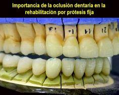 Importancia de la oclusión dentaria en la rehabilitación por prótesis fija   OVI Dental