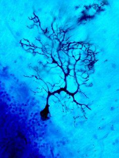 Neurona de Purkinje