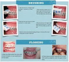 Image result for dental valentine day offers