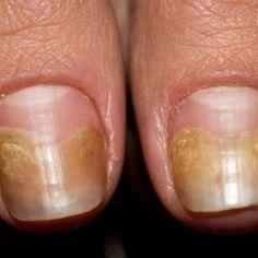 Ca urmare a umiditatii, mucegaiului si bacteriilor, infectiile fungice pot aparea la picioare si la unghii , de cele mai multe ori fiind neplacute, dureroase si inestetice. Prima etapa de infectiei fungice este aparitia unor pete albe sau... Peta, Nails, Beauty, Finger Nails, Ongles, Beauty Illustration, Maps, Nail, Nail Manicure