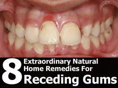 Receding gums are characterized by the gum tissue margin surrounding the teeth wearing away. This results in more of the tooth surface being exposed, and i