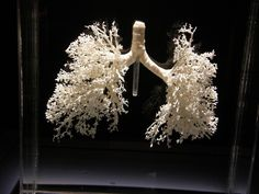pľúca A cast of the respiratory tree Lung Anatomy, Anatomy And Physiology, Human Anatomy, Respiratory Therapy, Respiratory System, Found Object Art, Weird Science, Nerd, Science And Nature