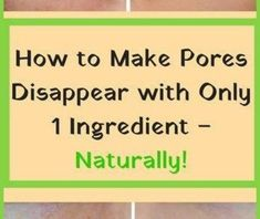 The most common problem that people with oily skin are experiencing is large pores. Diy Beauty, Beauty Skin, Health And Beauty, Beauty Hacks, Tighter Skin, Sweet Texts, Skin Cleanse, Face Scrubs, Minimize Pores