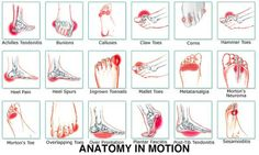 Your Feet Hurt Foot Pain Chart: common ailments and causes.Foot Pain Chart: common ailments and causes. Foot Pain Chart, Arthritis, Foot Pain Relief, Podiatry, Pain Management, Reflexology, Massage Therapy, Physical Therapy, Back Pain