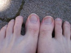 Never lose sight of how precious your wispy toe hairs are.