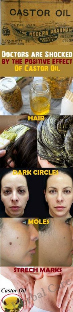 Doctors are Shocked by the Positive Effect of Castor Oil ,15 Amazing Uses of Castor Oil