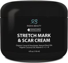 Radha Stretch Mark & Scar Cream