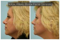 This woman is shown before and 3 weeks after first-time Botox, fillers, and Botox facial slimming. Facial Fillers, Botox Fillers, Hyaluronic Acid Fillers, Hair Transplant, Old Women, 3 Weeks, Fat, Woman, Women