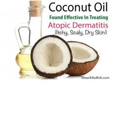 The power of coconut oil as a topic healing agent in chronic, inflammatory skin conditions like atopic dermatitis has recently been confirmed.  http://www.greenmedinfo.com/blog/coconut-oil-found-effective-treating-atopic-dermatitis-dry-itchy-scaly-skin