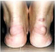 Haglunds deformity presentation on the heels
