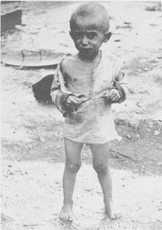 WWII. - 1943. - NDH - Jasenovac -  emaciated child at the Jasenovac camp