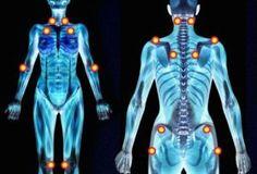 Resultado de imagen para puntos sensibles fibromialgia