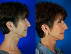 Georgia, 60 Before and After: Facelift / Reflection Lift and full face fractional CO2 laser skin resurfacing