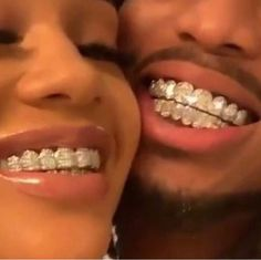 girls with grills aesthetic \ girls with grills ; girls with grills grillz ; girls with grills gold ; girls with grills aesthetic ; girls with grills teeth ; girls with grills grillz diamonds ; girls with grills teeth diamonds Boujee Aesthetic, Badass Aesthetic, Black Girl Aesthetic, Fille Gangsta, Gangsta Girl, Girl Grillz, Grillz Gold, Diamond Grillz, Flipagram Instagram
