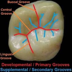 Dentaltown - Dental Anatomy and Tooth Morphology. Dental Anatomy - Primary & Secondary Grooves