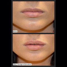 A perfect natural looking pout? Iris has mad skillz!!! @jordanskyemodeling your photos are next!! #newlips #juvederm #injections #millefiorimedicalskinrejuvenation #medicalspa #perfectpout