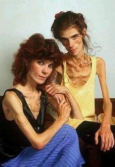 Samantha & Michaela Kendall, twins with anorexia, both now dead.I think they look like kylie and kendall jenner. Human Oddities, Anna, Medical History, Human Condition, My Heart Is Breaking, Medical Conditions, Body Image, Weird Facts, Human Body