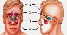 Zápaly dutín, známe aj pod odborným názvom sinusitída, sú infekčným ochorením výstelky pokrývajúcej nosovo-ušné priechody. Zdravé dutiny umožňujú bezproblémový priechod vzduchu. Ak sú však opuchnuté azablokované, dáva sa tým priestor množeniu patogénnych baktérií, ktoré vedú knásledným infekciám. Príznaky atypy zápalov dutín Medzi najčastejšie príznaky zápalov