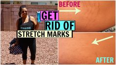 How To Get Rid of Stretch Marks (Banish Acne Scars Review)