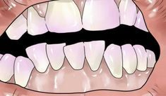 How to Remove Plaque. Plaque is the accumulation of bacteria, dead cells, and debris on your teeth. It is invisible to the eye, but is harmful to the teeth as it interacts with certain foods, releasing an acid which causes tooth decay. Teeth Whitening Remedies, Natural Teeth Whitening, Healthy Teeth, Healthy Tips, Sante Bio, Tartar Removal, Plaque Removal, Tooth Sensitivity, Bra Hacks