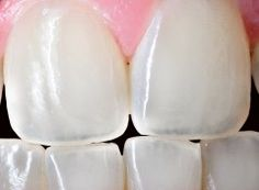 Lasers that can regrow your teeth instead of getting fillings or root canals.