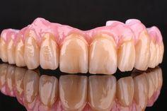 all ceramic implant arch - no metal!
