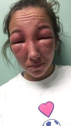 #интересное  Девушка стала жертвой ядовитого плюща (2 фото)   Ядовитые растения могут вызывать различную аллергическую реакцию организма, и поэтому от них стоит держаться подальше. Эта девушка пренебрегла данным правилом и стала жертвой ядовитого плюща. Только