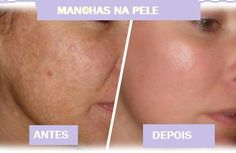 Notícias: Como retirar manchas na pele?