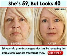 All Time Best Cool Ideas: Anti Aging Skin Care Diet skin care serum dr.Anti Aging Tips Stay Young skin care steps smokey eye. Creme Anti Age, Anti Aging Cream, Anti Aging Tips, Anti Aging Skin Care, Les Rides, Too Faced, New Skin, Plastic Surgery, Good Skin
