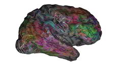 ALL OVER THE MAP  The brain areas that respond to the meaning of words speckle much of the cerebral cortex, the wrinkly outer layer of the brain. ~~ Alexander Huth, pycortex software by James Gao, Mark Lescroart and A. Huth