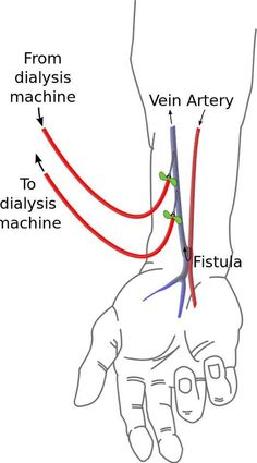 Fistula for hemodialysis