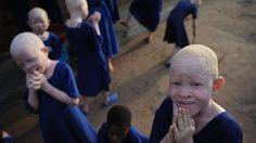 Na Tanzânia Estão Caçando Albinos Para Vender a Pele a US$ 75 Mil | VICE Brasil http://www.vice.com/pt_br/read/na-tanzania-estao-cacando-albinos-para-vender-a-pele-a-75-mil?utm_source=vicefacebr