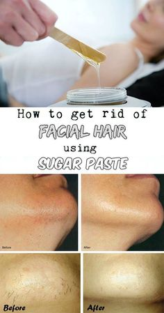 Learn how to get rid of facial hair using sugar paste.Learn how to get rid of facial hair using sugar paste. Beauty Care, Beauty Skin, Beauty Secrets, Beauty Hacks, Diy Beauty, Beauty Makeup, Facial Hair Growth, Facial Hair Remover, Pcos Hair Growth
