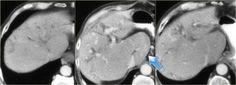 The Radiology Assistant : Biliary duct pathology Caroli Disease, Medullary Sponge Kidney, Portal Hypertension, Bile Duct, Ulcerative Colitis, Radiology, Ultrasound, Continue Reading, Arrow