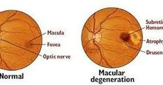 The latest report on Age Related Macular Degeneration Drug industry takes a closer look at the value chain assessment for the forecast period, 2019 to