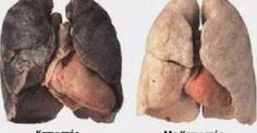 Anti Smoking System: smokers lungs with enlarged heart vs healthy lungs. Natural Beauty Remedies, Herbal Remedies, Health Remedies, Enlarged Heart, Organic Raw Honey, Respiratory Therapy, Respiratory System, Health Class, Urinary Tract Infection