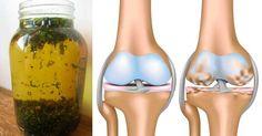 Con este buen remedio podrás ayudar a reducir eso molestos síntomas de la osteoartritis, reduciendo el dolor, la inflamación así como f...
