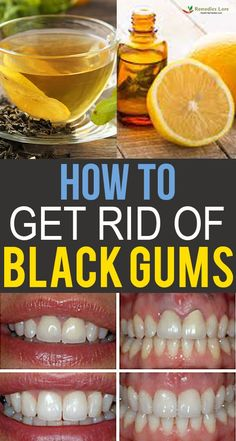 How to Get Rid of Black Gums - Remedies Lore Teeth Health, Healthy Teeth, Swollen Gums Remedy, Teeth Care, Skin Care, Dental Facts, Natural Teeth Whitening, Black Gums, Cold Remedies